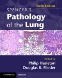 "Spencer""s Pathology of the Lung 2 Part Set"