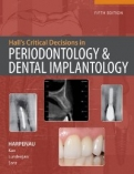 HALL&#34;S CRITICAL DECISIONS IN PERIODONTOLOGY <b>*OFERTA* </b>